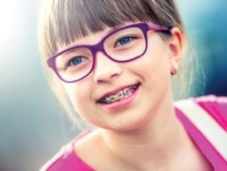Myths and Truths about Caring for your Braces | Birminghamparent.com