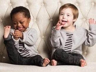 A Special Needs Adoption Story: Jojo and Zee | Birminghamparent.com