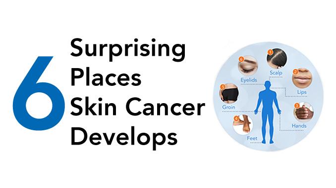 6 Surprising Places Skin Cancer Develops